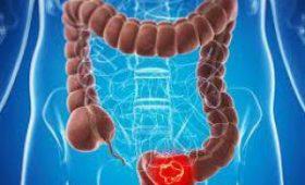 Ранние симптомы рака толстой кишки